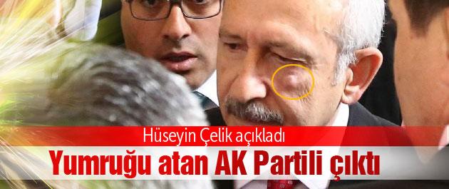 Saldırgan AK Parti üyesi çıktı SON DAKİKA